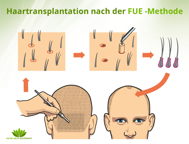 Haartransplantation mit der FUE Methode
